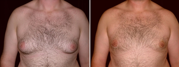 Gynecomastia and Breast Cancer man front photo