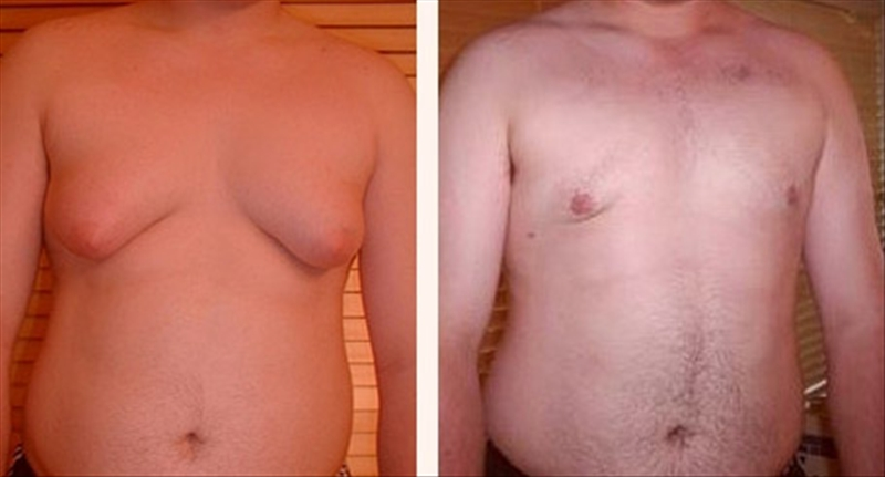 Gynecomastia Affects Mental Well Being of Teens photo