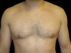 Incomplete Gynecomastia Surgery - After Crater Deformity Correction