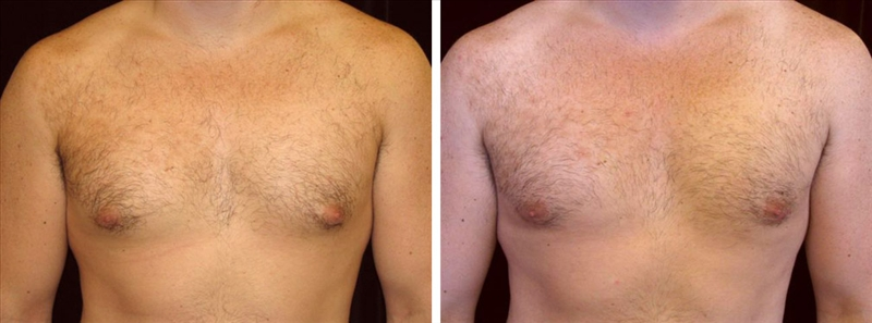Gynecomastia man before and after photo