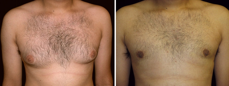 Before and After Gynecomastia Surgery in San Francisco