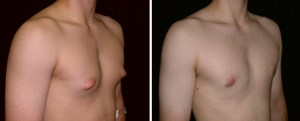 Incomplete Gynecomastia Surgery - man body photo