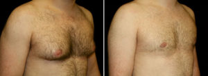 Gynecomastia Surgery and Recurrents - man body photo