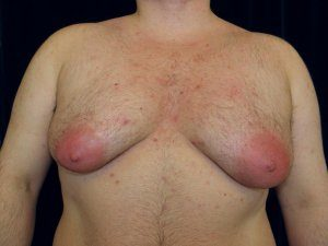Male Breast Reduction After Weight Loss - man body photo