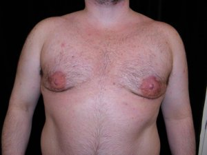 Male Breast Reduction After Weight Loss - six months after stage one photo
