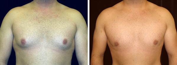 Before and After gland excision and liposuction photo