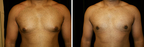man body before and after gynecomastia front photo 1