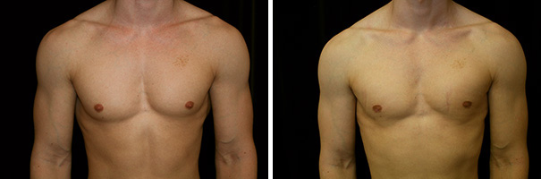 man body before and after gynecomastia front photo 2