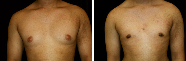 man body before and after gynecomastia front photo 3