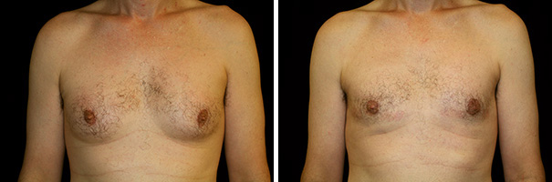 man body before and after gynecomastia front photo 4