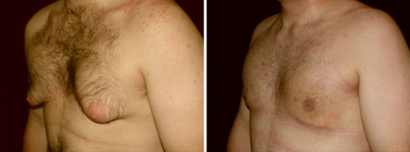 Gynecomastia man before and after photos