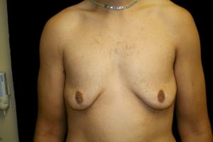 man patient gynecomastia after weight loss photo