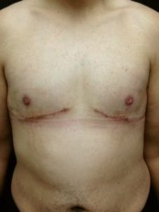 Male Breast Reduction After Weight Loss - double incision tissue removal and free nipple graft
