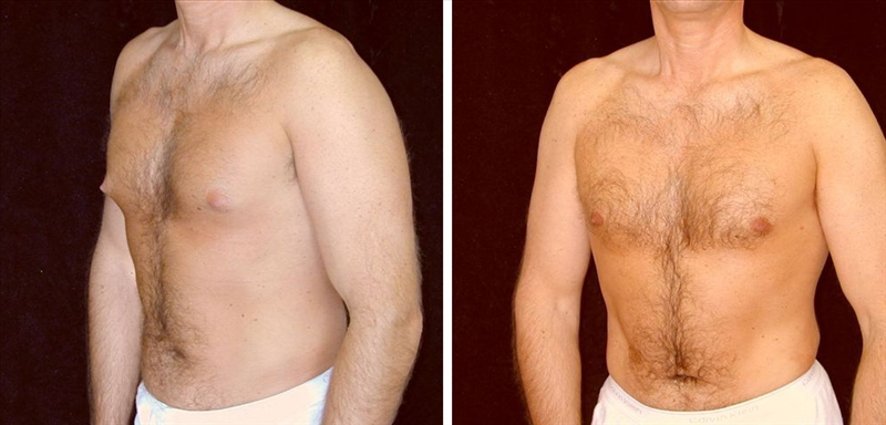 male breast reduction with gland excision and liposuction photo