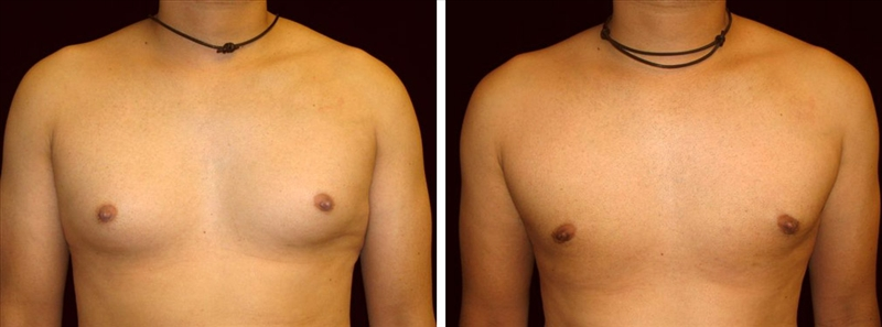 Risperdal May Cause Gynecomastia - man front photo