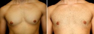 Improving Scars after Gynecomastia Surgery - man body photo